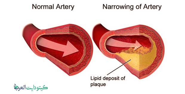 ارجيم الكيتوني - الكولسترول الضار والنافع