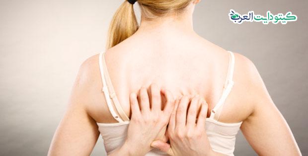 حساسية الكيتو: أفضل 5 طرق للتخلص من الطفح الكيتوني