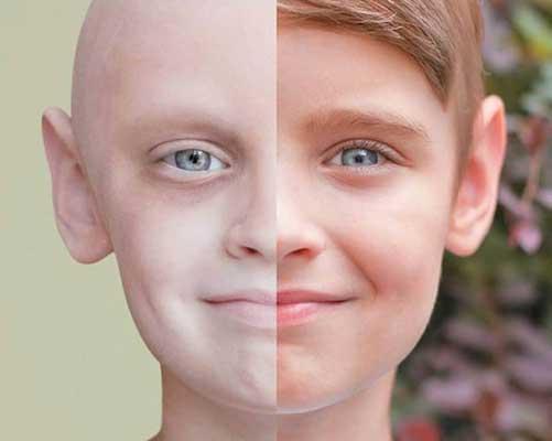 نظام الكيتو لمرضى السرطان
